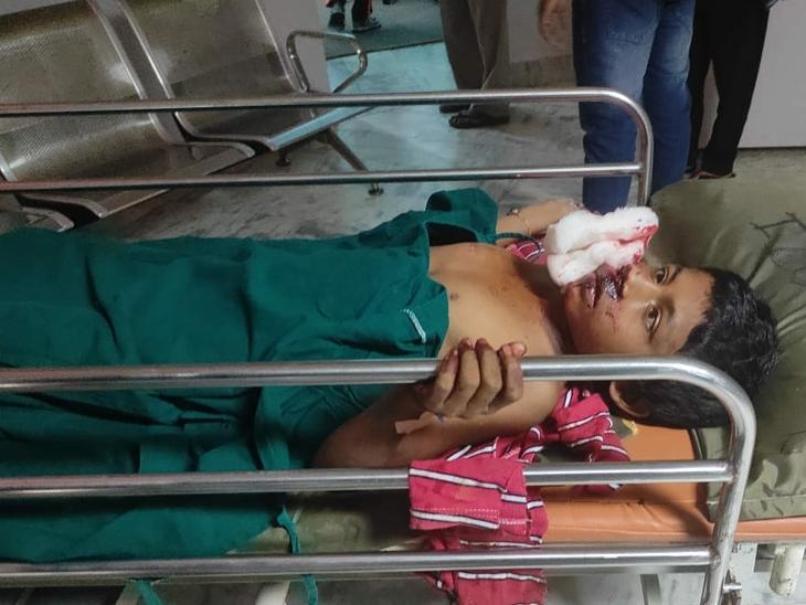 બાળક પર રીંછે હુમલો કરતાં સારવાર અર્થે ખસેડાયો હતો. - Divya Bhaskar