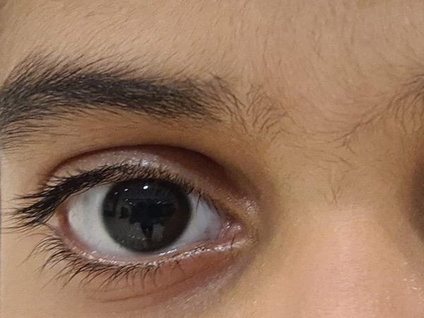 મોરબીમાં આંખોના બાળ દર્દી 22 ટકા વધ્યા, મોબાઇલ-લેપટોપના વપરાશથી બાળકોમાં આંખો સંબંધી તકલીફો સામે આવી|મોરબી,Morbi - Divya Bhaskar