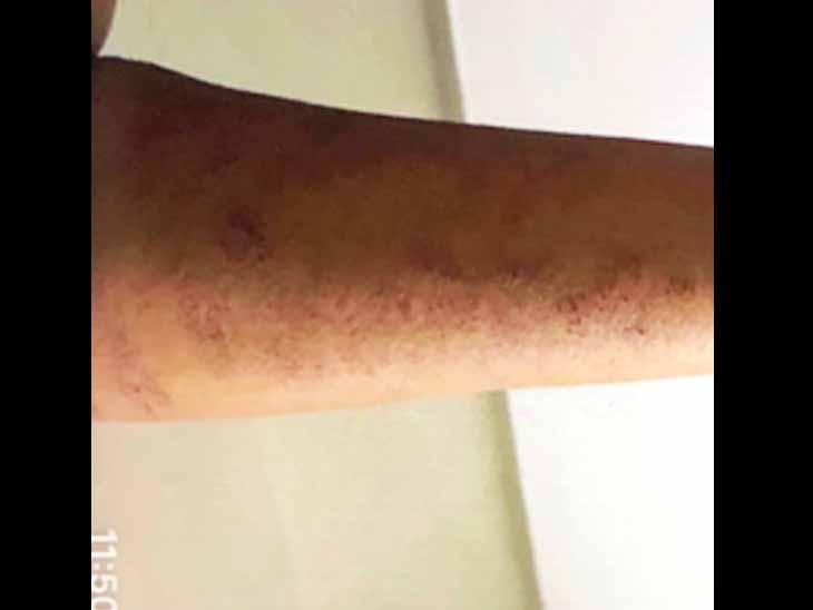 છાણીની યુવતીએ હાથ પર બ્લેડના અસંખ્ય ઘા માર્યા હતા. - Divya Bhaskar