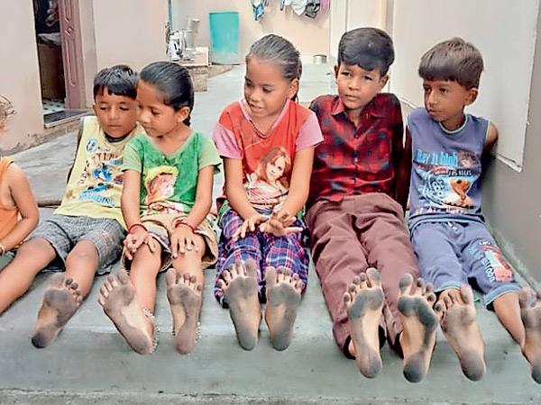 બાળકોના પગમાં કાળી રજકણ. - Divya Bhaskar