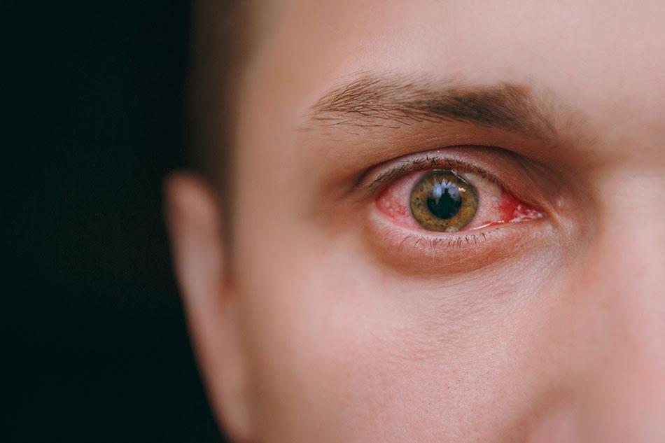 ઇલેક્ટ્રોનિક્સ ગેજેટ્સ કરી રહ્યા છે તમારી આંખો ખરાબ, ડિજિટલ દુનિયામાં આટલી વાતોનું ધ્યાન રાખી આંખો હેલ્ધી રાખો|હેલ્થ,Health - Divya Bhaskar
