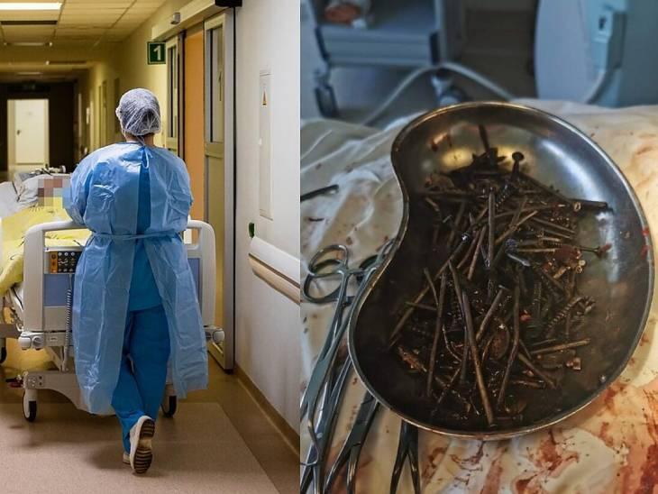 દારૂ છોડ્યા પછી ખીલ્લી-સ્ક્રૂ ગળવાનું ચાલુ કર્યું, ડૉક્ટરે દર્દીના પેટમાંથી 1 કિલો મેટલ મટિરિયલ કાઢીને જીવ બચાવ્યો|લાઇફસ્ટાઇલ,Lifestyle - Divya Bhaskar