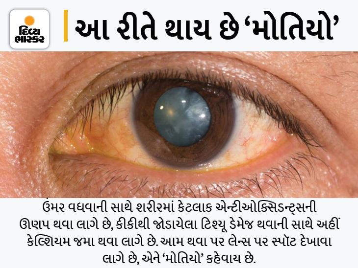 મોતિયો રોકવા માટે વૈજ્ઞાનિકોએ 'પેલેટ' ઈમ્પ્લાન્ટ ડેવલપ કર્યું, આંખોમાં તે કેલ્શિયમ ઘટાડી સર્જરીનું જોખમ ઓછું કરશે લાઇફસ્ટાઇલ,Lifestyle - Divya Bhaskar