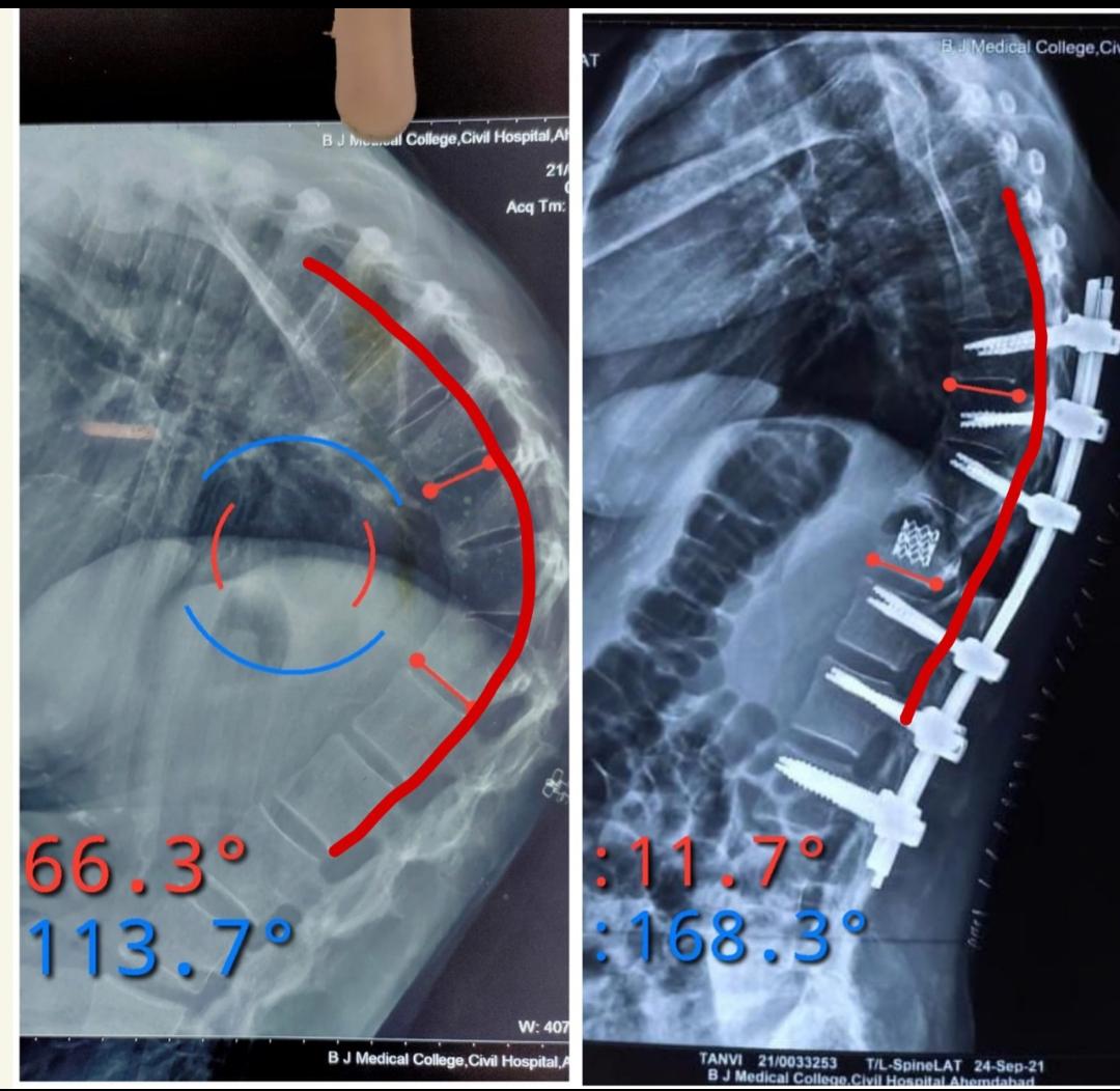 ઓપરેશન પહેલાનો અને પછીનો ફોટો